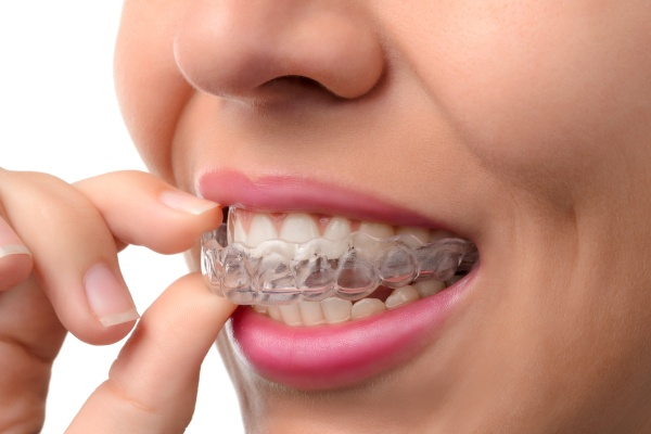 Things To Know Before Getting Invisalign
